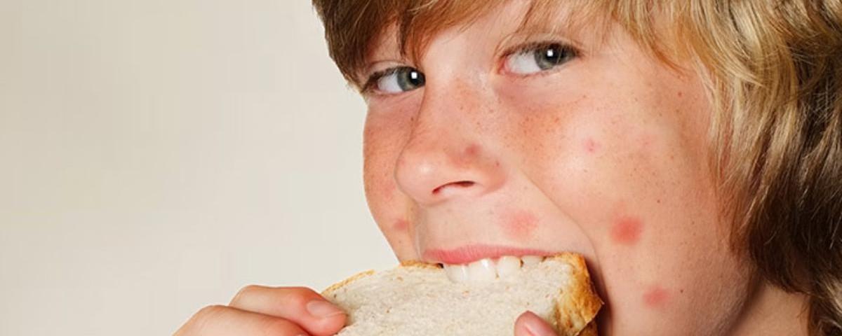Пищевая аллергия, поллиноз, ринит, крапивница, астма